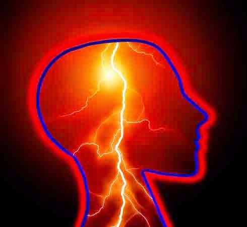 Penyakit Stroke, Epilepsi
