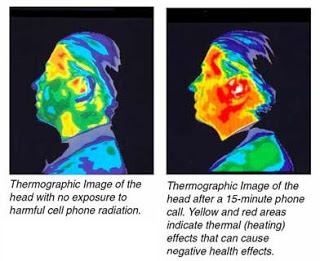 Brain Damage Cell Phone