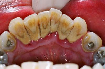 Inilah Cara Ampuh Menghilangkan Karang Gigi