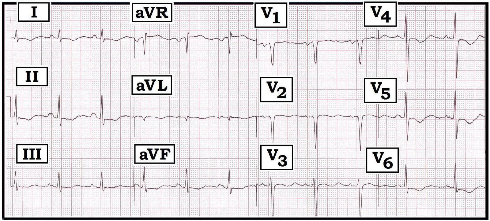 ECG Interpretation: ECG Interpretation Review #27 (ST-T Wave Changes ...