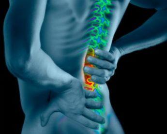 El hinchazón de la hernia intervertebral