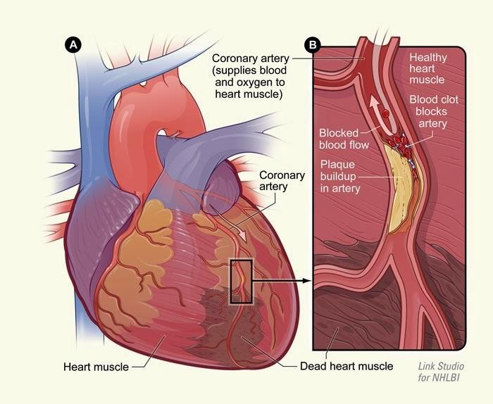 Sindrom Koroner Akut - Penyebab Penyakit Jantung