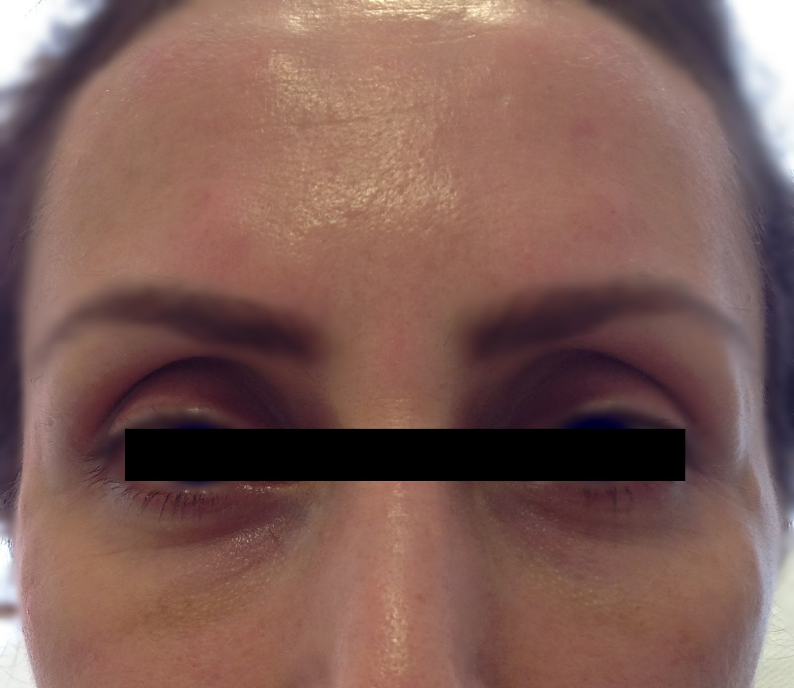 Gözlerdeki Şişlik Nasıl Geçer: Gözlerdeki Şişliğe Doğal Çözüm