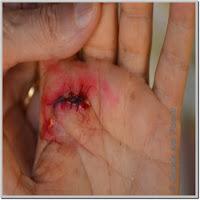Corte na palma da mão. Procedimentos de primeiros socorros. Sutura com pontos.