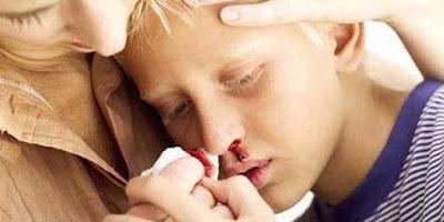 Obat Kangker Darah Kronis Terbaik dan Terbukti Menyembuhkan