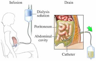 post insertion catheter care audit A clinical audit will be undertaken with staff in july 2015 measuring clinical  practice  the catheterisation procedure must only be performed after alternative   a catheter care plan must be used to record the rationale for insertion on- going.