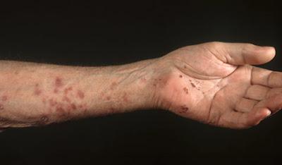 rash on wrist and forearm - MedHelp