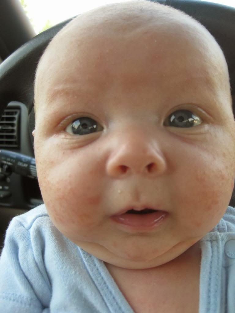 infant acne: