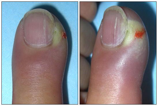 El tratamiento de las uñas encarnadas petrozavodsk