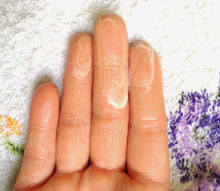 La crema coreana da pigmentary nota risposte