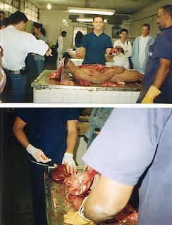 Exame cadaverico