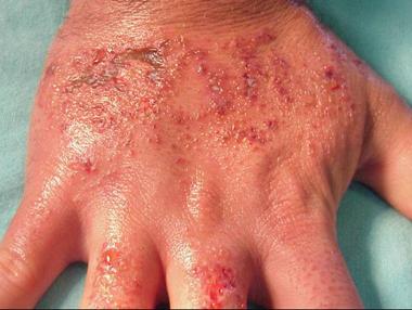 dermatitis causas y tratamientos naturales