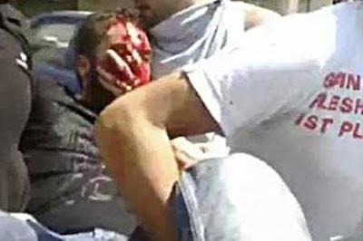 كسور الرأس من الإصابات التى تحتاج إلى سرعة التصرف وعناية فائقة للمرور بالمصاب إلى بر الأمان