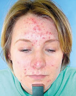 acne treatment reviews