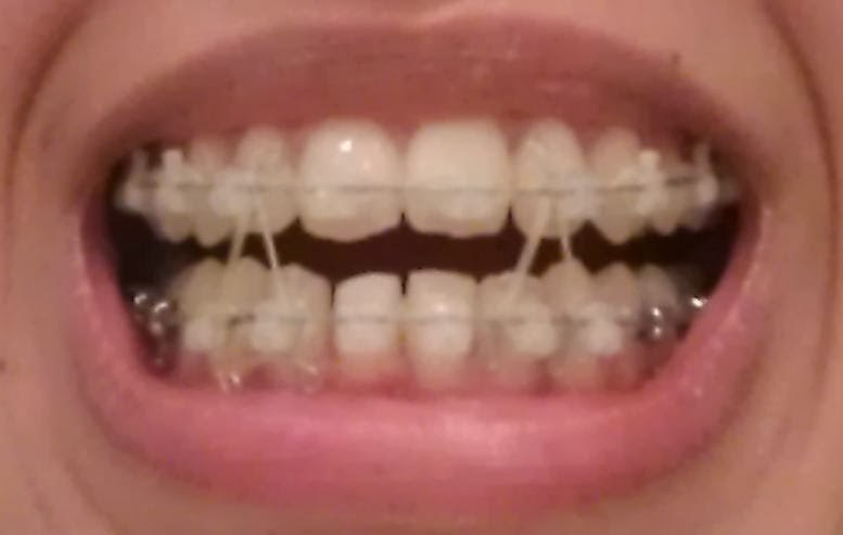 My Damon Clear Braces: Week 23 - before and after pictures