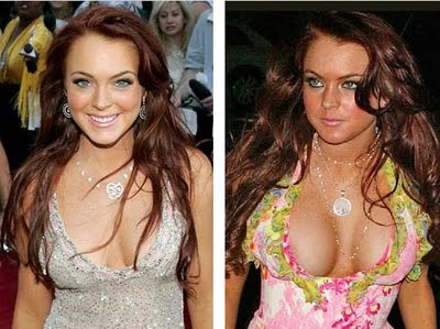 Celebrities before and after breast implants