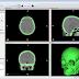 CT-Scan und InVesalius