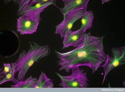 Bone cells imaged using confocal microscopy