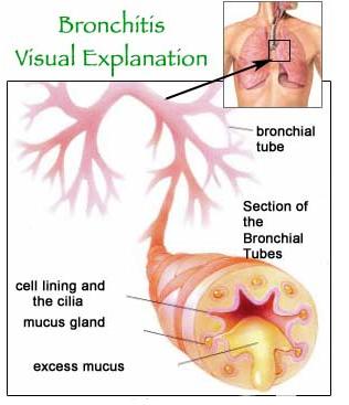 Pengobatan Alternatif Penyakit Bronkitis