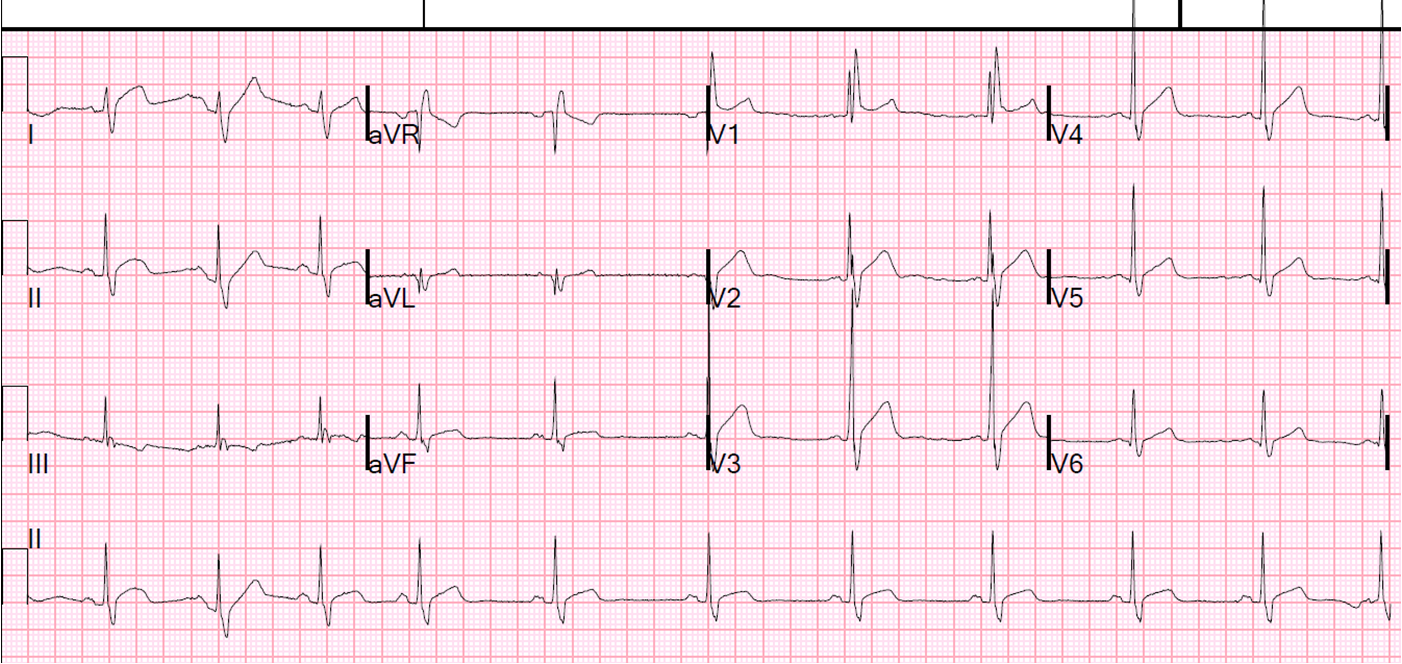 Dr. Smith's ECG Blog: Right Bundle Branch Block with ST ...