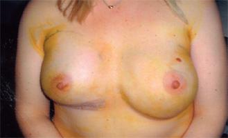 plastik bryster Ses bryster
