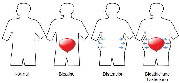 Stomach Bloating & sistension