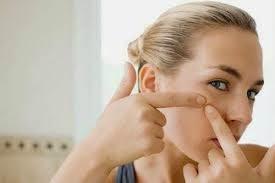 9 Faktor Penyebab Jerawat