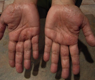 Dyshidrosis Treatment: How you Can Help yourself