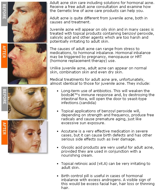 causes and treatment of acne essay Nodular acne is one of the most severe cases of acne and is surpassed only by cysts when acne occurs, it often first emerges as a non-inflammatory condition.
