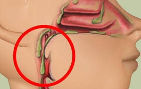 Obat Mengeluarkan Dahak Cordyceps Plus Capsule