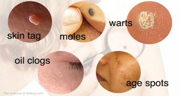 Brown Spots on Skin & Discoloration | Paula's Choice