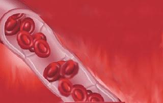 Gejala Penyakit Anemia dan Penyebabnya