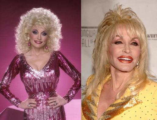 Dolly Parton Plastic Surgery Disasterous Before and