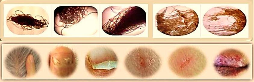 Malassezia Cure Naturally