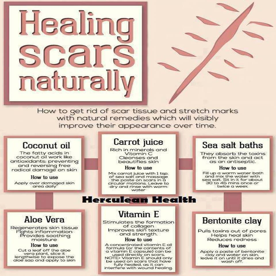 Healing Scar Tissue Natural Remedies