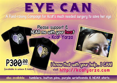 EYE CAN: Fund Raising Campaign for Kcat's Eye Surgery