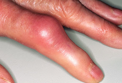 Finger-Joint-Pain