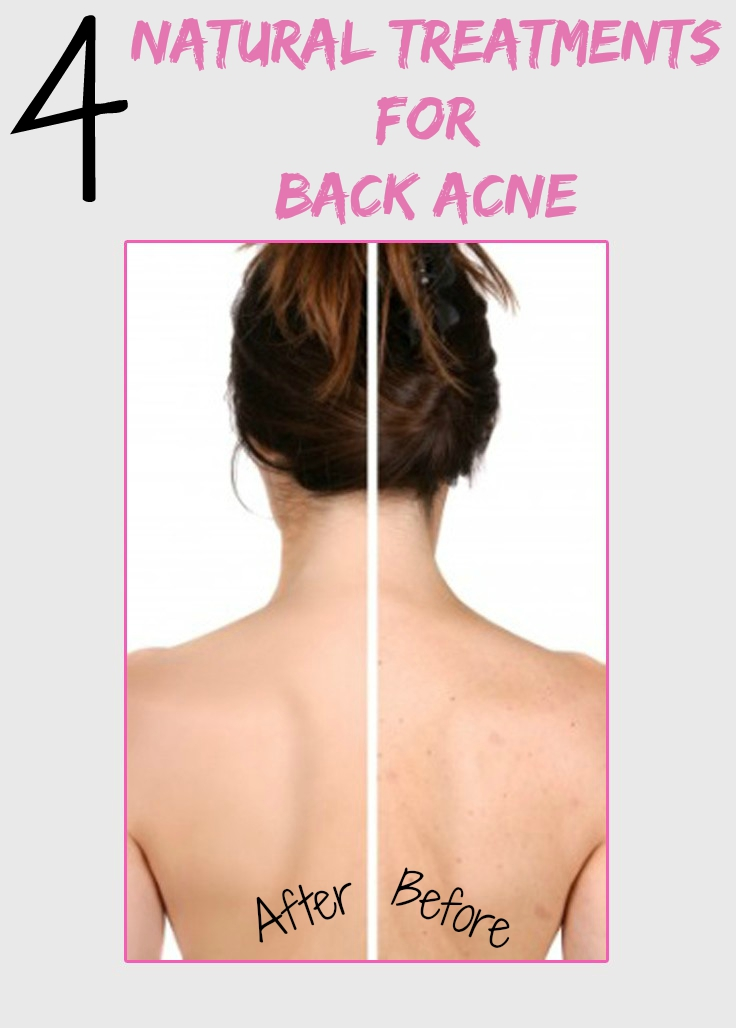 Women's Mag Blog: 4 Natural Treatments for Back Acne
