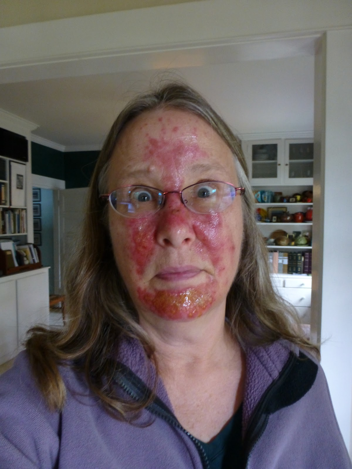cold sores on chin #10