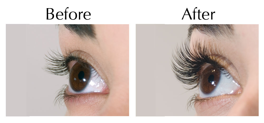 Buy Careprost Eye Drop Online Generic Latisse For Sale