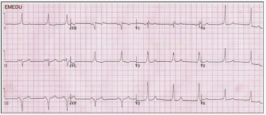 ECG: trouver le probleme! ECG+2