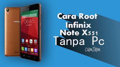 Cara Root Infinix Note X551 Tanpa Pc