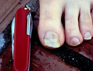 Los preparados para el tratamiento las derrotas de hongos de las uñas