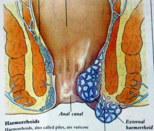 Image obat ambeien atau hemorrhoid aman dan manjur