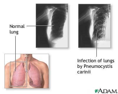 Pneumocystis Jiroveci Carinii Pneumonia