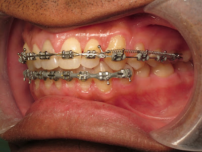 Diastema Closure, orthodontics, braces, niti coil spring
