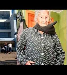 Janin Berusia 60 Tahun Ditemukan di Perut Nenek 91 Tahun