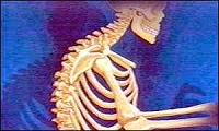 Helpful Herbs to Prevent Osteoporosis - Tips on Healthy Bones