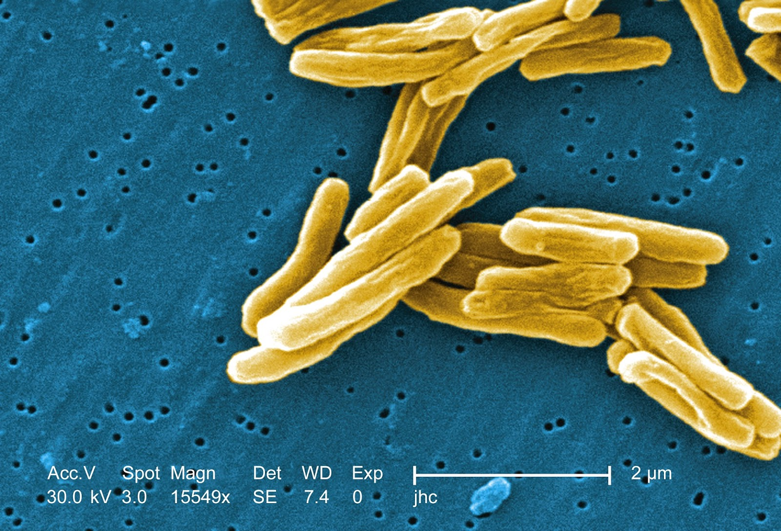 Fresh Water Sources To Fight Drug-Resistant Tuberculosis