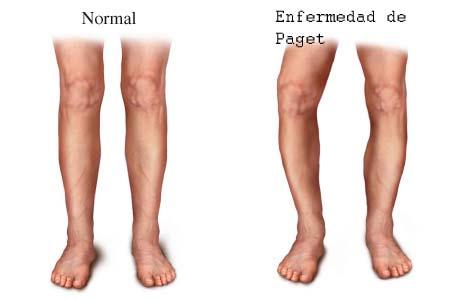 Infecciones y parasitosis óseas enfermedad de paget
